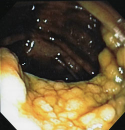 Removing a Large Flat Colon Polyp by EMR without Surgery