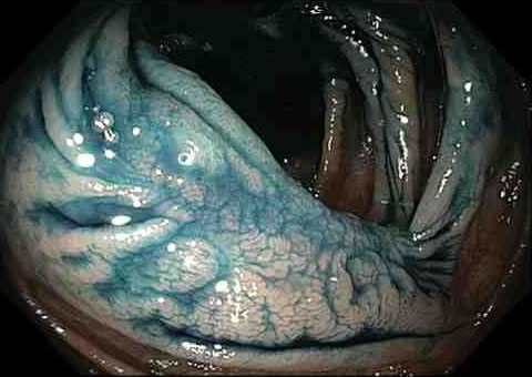 What happens during a colonoscopy?